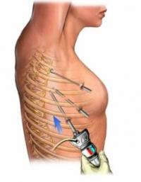 Эндоскопическая симпатэктомия при гипергидрозе