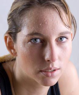 Гипергидроз лица: не стесняйтесь вовремя показаться врачу