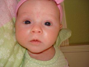 Гипергидроз у детей: рано волноваться
