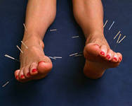 Иглоукалывание - лечение гиперпотливости