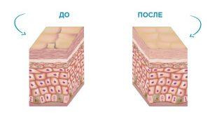 Кожа до и после ионофореза
