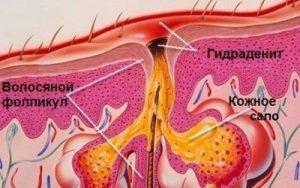 Гидраденит: причины развития и симптомы заболевания