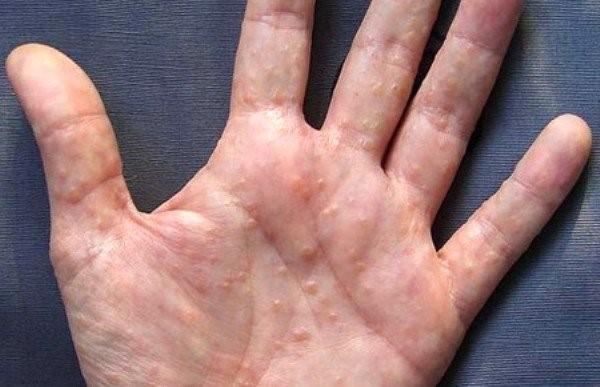 Дисгидроз на руках: причины и лечение