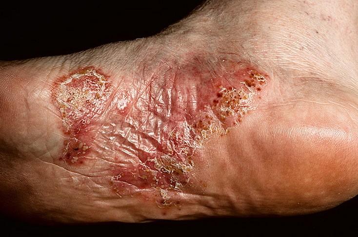 Трещины и шелушения ног