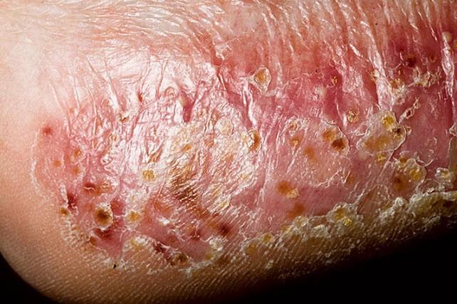 Лечение дисгидроза стоп и рук