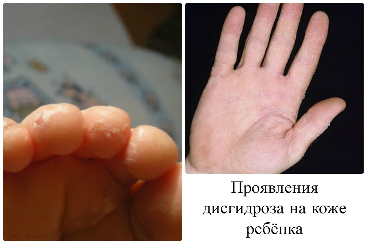 Дисгидроз у ребенка лечение фото