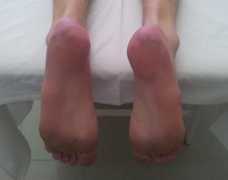 Эритромелалгия – причины, симптомы, диагностика, лечение