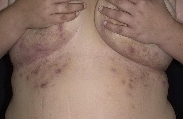 Воспалительные очаги гидраденита под грудью