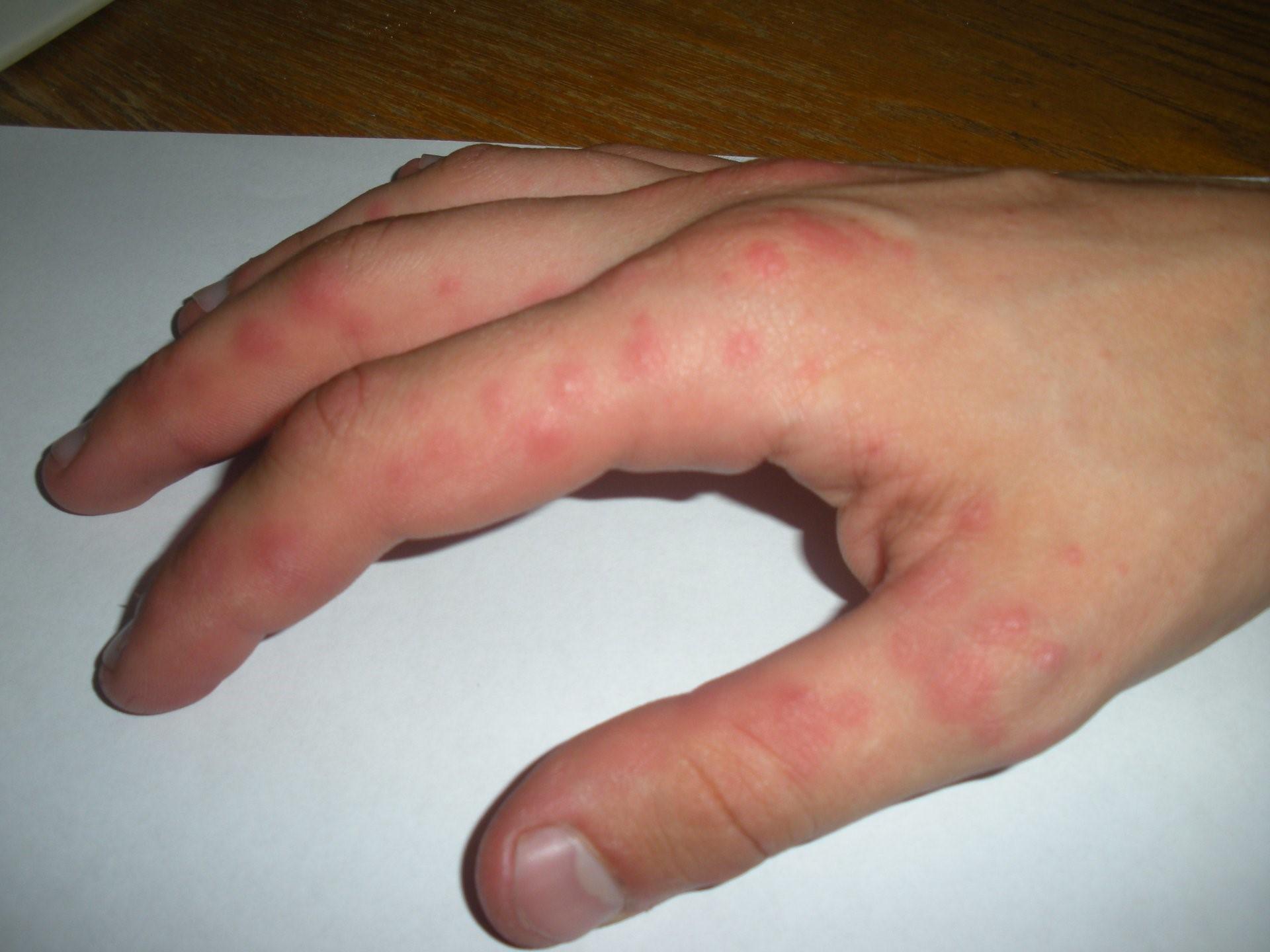 Потница на руках у взрослых лечение