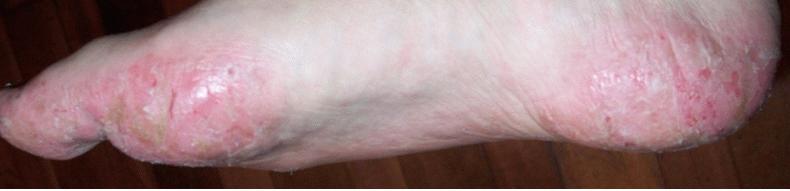 Трещины стопы при помфоликсе