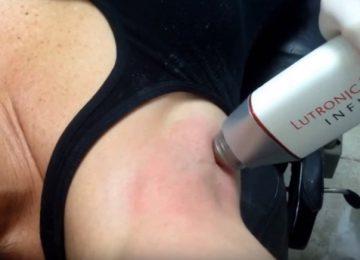 Радиочастотное лечение излишней потливости