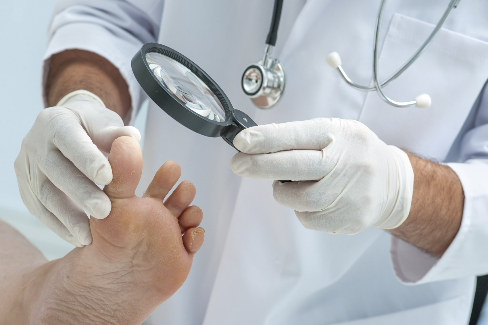 Поражение инфекцией кожи на ногах