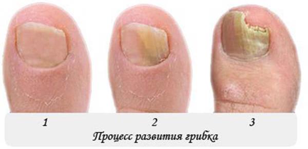 Куда обратиться с грибком ногтей у ребенка
