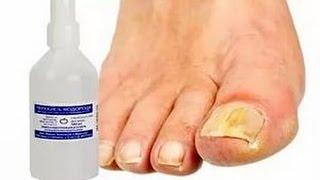 Грибок на пальцев ног лечение