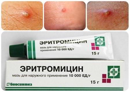 Эритромициновая мазь от прыщей – как применять и от чего помогает