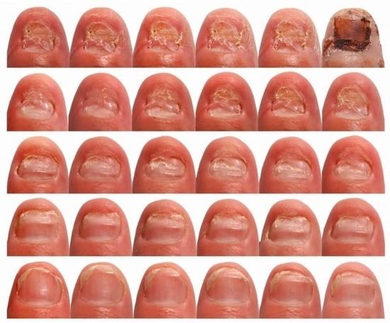 Пораженная микозом ногтевая пластина