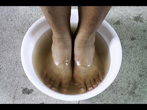 Лечение грибка на ногах народные способы