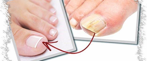 Импортные средства от грибка ногтей на ногах - О грибке ногтей
