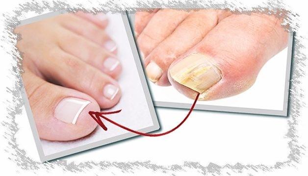 Как вылечить грибок ног и ногтей народным методом