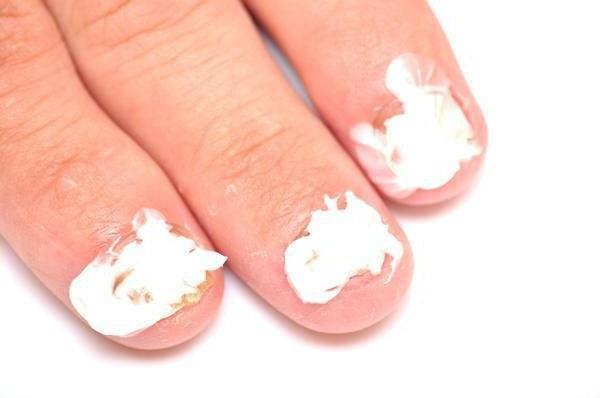 Препарат для лечения грибка ногтей