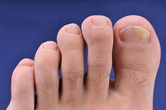Мазь из эссенции от грибка ногтей