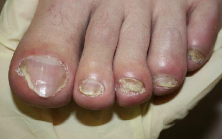 Какое выбрать средство от грибка ногтей