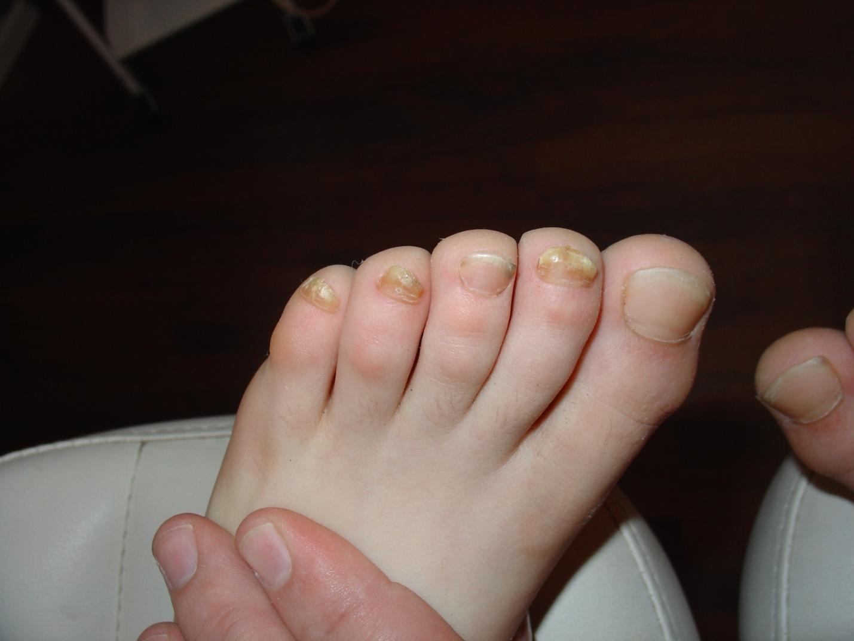 Лечение грибка ногтей, головы, лица у ребенка – как не навредить