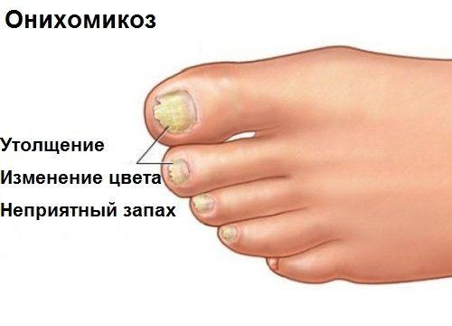 Тербинафин таблетки при грибке ногтей отзывы