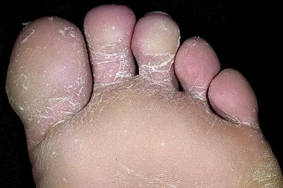 Дерматофития стопы
