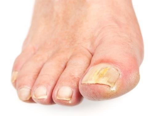 Противогрибковые препараты внутрь для лечения ногтей