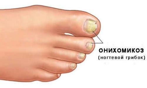 Блог сайта « Грибок на ногте пальца ноги лечение»
