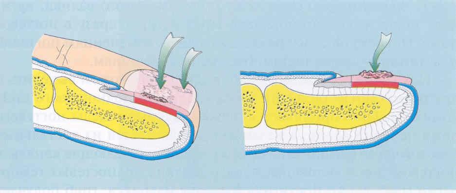Форма грибкового поражения