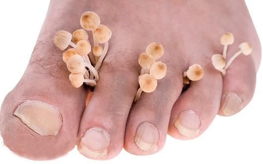 Мазь от грибка стопы ног