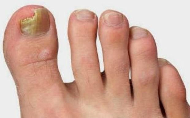 Как побыстрее вылечить грибок ногтей на ногах