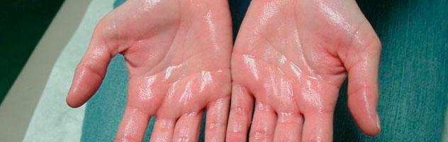 Почему потеют ладони — причины у женщин, мужчин и детей