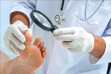 Лазерное лечение грибка ногтей: преимущества и особенности процедуры