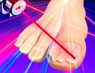 Ход лечения грибка ногтей лазером