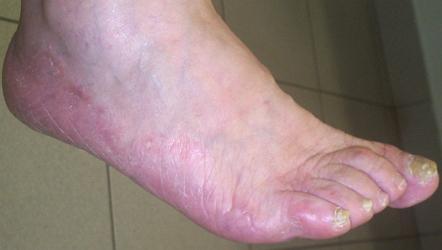 Микоз ногтей ног