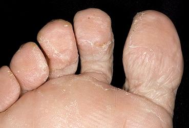 Микоз подошвы ног
